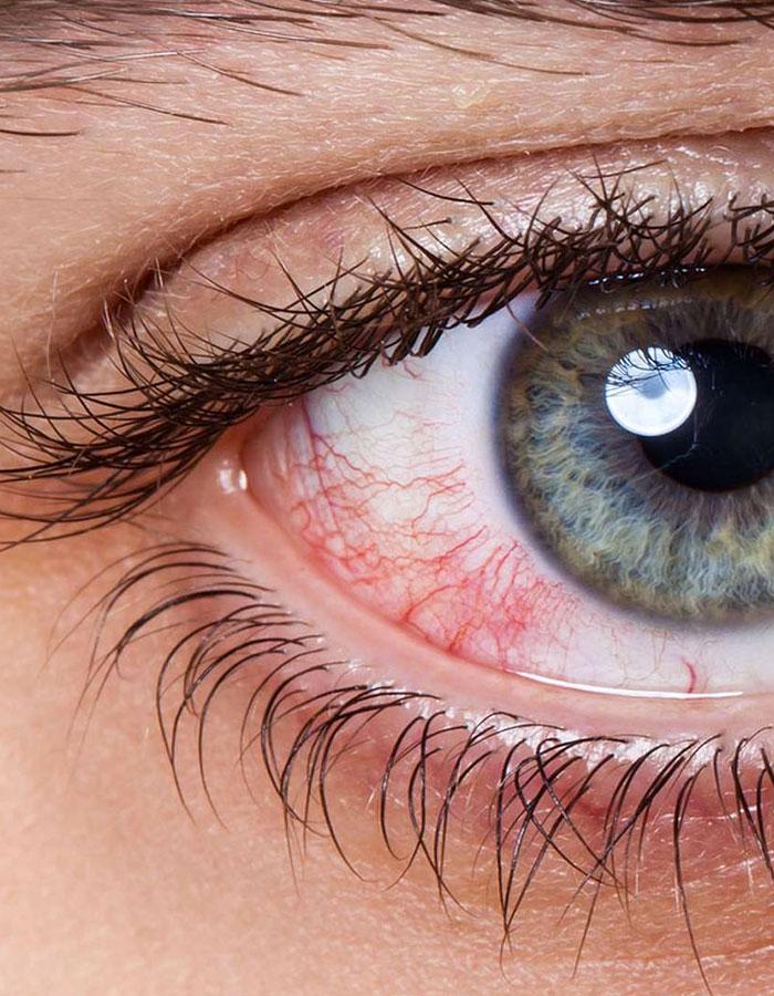 Les pathologies de l'œil